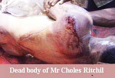 body-of-choles-ritchil-b.jpg