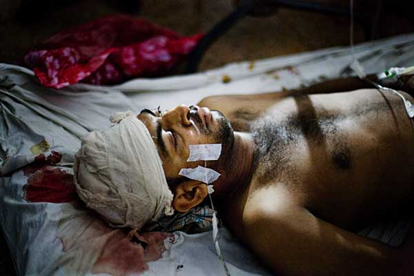 Critically injured worker Jahangir Alam lying on the floor of Chittagong Medical Hospital Ward 28.